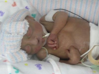 Primordial Dwarfism Baby Ella's Grace: Microc...