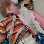 young girl on bed with trach and feeding tube