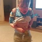 boy with colostomy and feeding tube