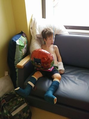boy with casts on feet