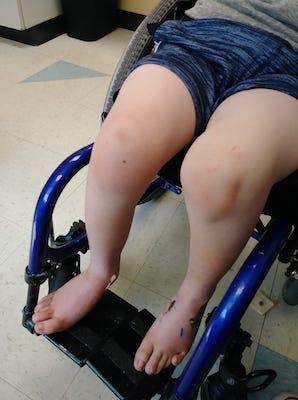 legs in a child's wheelchair