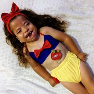 young girl in bikini with feeding tube